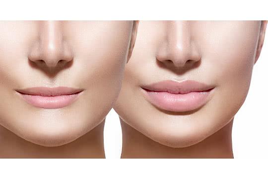 How do I make thin lips look more full?